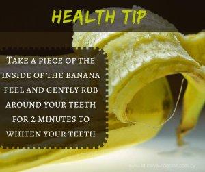bananas for teeth tw 2716