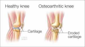 mayo arthr knee tw 12716