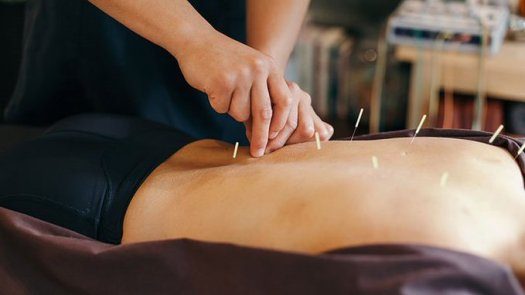 everyday health acupuncture